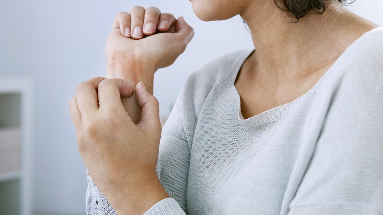 Krätze: Frau kratzt sich an Unterarm und Handgelenk.